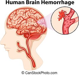 Median section of human brain diagram median section of vector diagram of human brain hemorrhage ccuart Choice Image