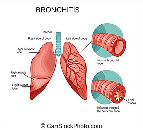 Diagram of the human lungs. Bronchitis