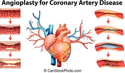 Artery disease atherosclerosis stroke and heart attack fatty diagram showing angioplasty for coronary artery disease ccuart Choice Image