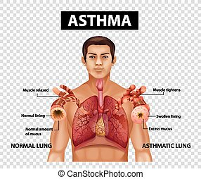 Diagram showing Asthma on transparent background
