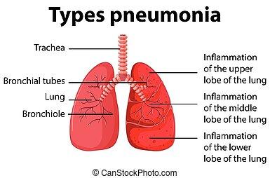 diagram of pneumonia wiring diagram blog