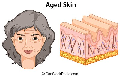 Diagram showing woman with aged skin
