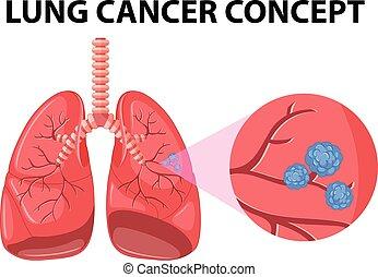 diagrama, conceito, câncer pulmão