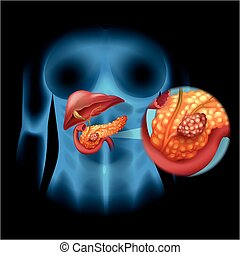 diagrama, detalle,  cáncer,  páncreas