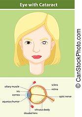 diagrama, mostrando, olho, catarata