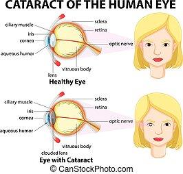 diagrama, mostrando, olhos, catarata