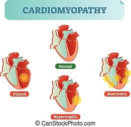 diagramm, vektor, störungen, conditions., normal, medizin, kreuz, abbildung, ausgedehnt, restrictive, hypertrophic, beispiele, cardiomyopathy, abschnitt