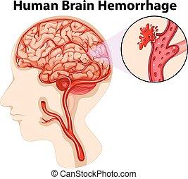 diagramme, cerveau, hémorragie, humain
