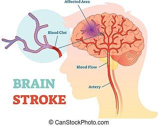 diagramme, illustration, anatomique, cerveau, coup, vecteur, plan