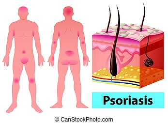 diagramme, psoriasis, projection, humain