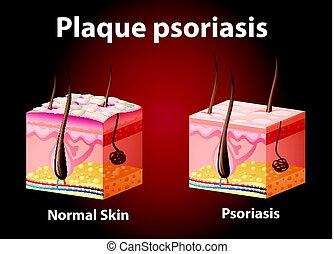 diagramme, psoriasis, projection, plaque