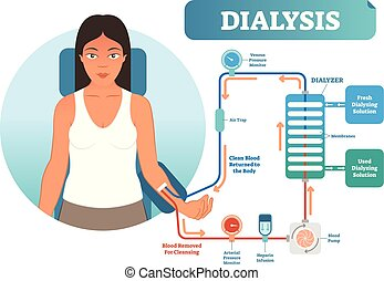 Dialysis medical procedure system vector illustration diagram. Filtering blood in case of kidney malfunction. Clinic procedure technical equipment scheme.
