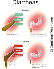 Diarrheas. Illustration colon. - Normally water is added...