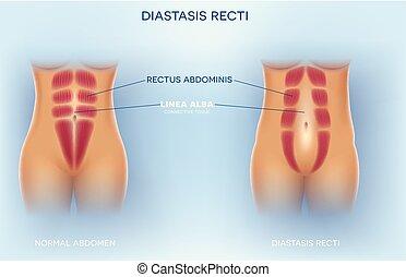 diastasis, recti, addominale, o, separazione