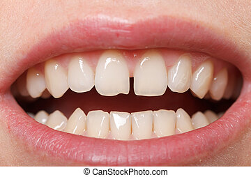 Diastema between the upper incisors - Diastema between the...