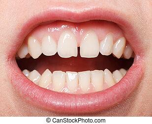 Diastema between the upper incisors - Diastema between the...