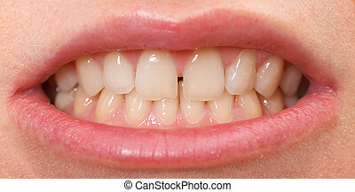 Diastema between the upper incisors is a normal feature