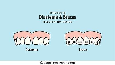 Diastema & Braces illustration vector on blue background. Dental concept.