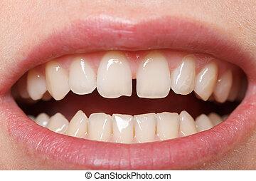 diastema, tussen, de, bovenleer, incisors