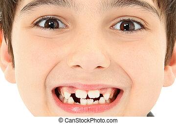dichtbegroeid boven, teeth missend