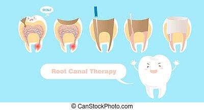 diente, con, raíz, canal, terapia