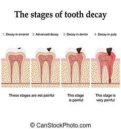 diente, formación, decaimiento