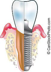 diente, implante
