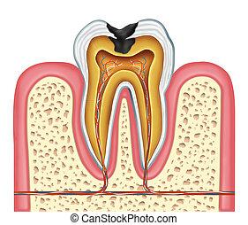 diente, interior, anatomía, de, un, cavidad