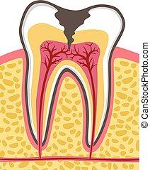 diente, sección transversal, con, caries