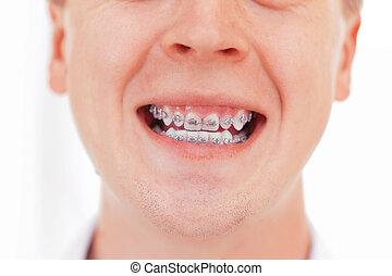 dientes, con, braces.