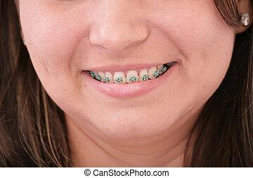 dientes, con, fierros
