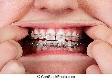 dientes, con, ortodóntico, brackets.