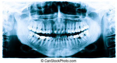 dientes, saque una radiografía la imagen