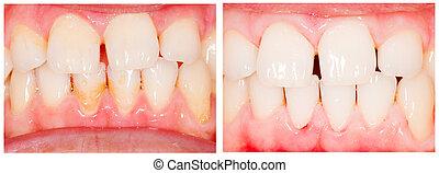 dientes, tiza