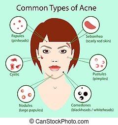diferente, tipo, de, acne., vector, ilustración, con, piel, problems., cara mujer, aislado