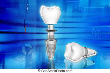 Dental implant - Digital illustration Dental implant in ...