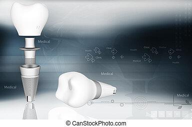 Dental implant - Digital illustration of Dental implant in ...