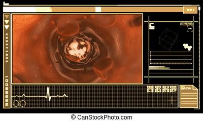 Digital interface displaying blood