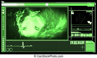 Digital interface showing bloodflow