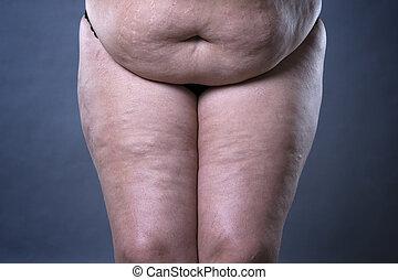 dik, vrouwlijk, pens, na, zwangerschap, spannen, tekens, en, varicose, aders, closeup