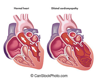 Dilated cardiomyopathy - medical Illustration of the effects...