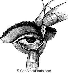 Dilation of Lacrimal Duct Using Probes, vintage engraving