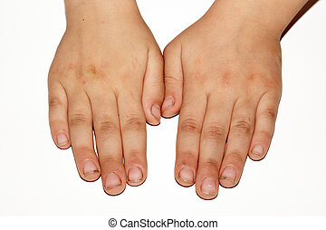 Dirty hands of a child on a white background