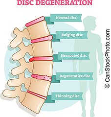 Disc degeneration flat illustration vector diagram with...