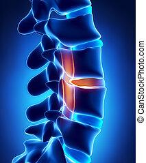 disco herniated, con, presión, en, médula espinal