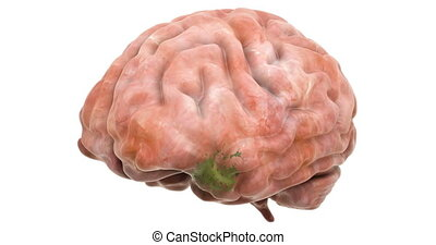 Disease spread on brain, 3d animation. 3D rendering isolated on white background