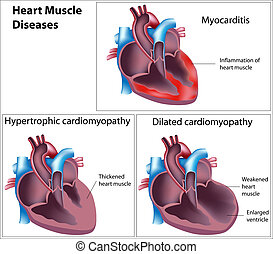 Diseases of heart muscle, eps8