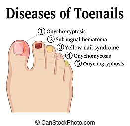 Diseases of Toenails