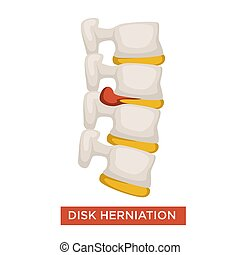 Disk herniation spine disease bone inflammation vector...
