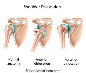 dislocado, hombro, eps8